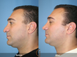 Dr.  Kevin Sadati Discussess Open Rhinoplasty