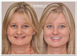Anti Aging Face Lift Dentistry - Before and After Picture