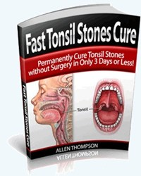 how to remove tonsil stones review
