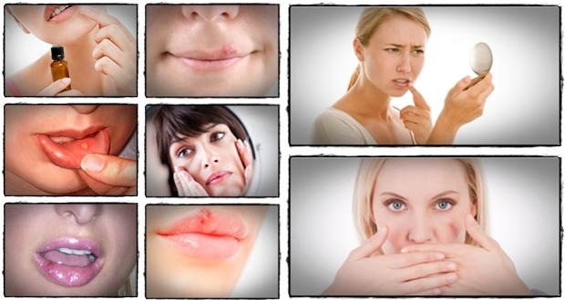 what is the best cold sore treatment prescriptions