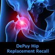 $4 Billion DePuy ASR Hip Recall Lawsuit Settlement Reportedly Agreed...