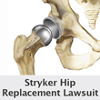 Stryker Hip Lawsuits Consolidated In NJ Grow To Almost 2,100 Allege Metallosis, Necrosis, Osteolysis and Revision Surgery From Purported Defective Hip Implant