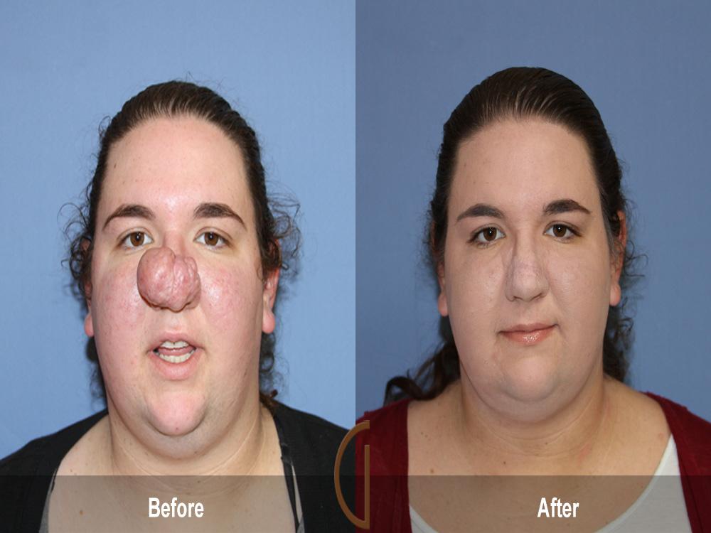 Facial Plastic Surgery Message Board 119