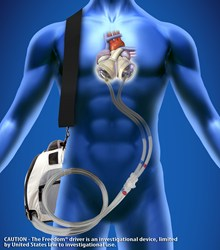 SynCardia, Total Artificial Heart, artificial heart, freedom driver, heart failure, heart transplant, donor heart