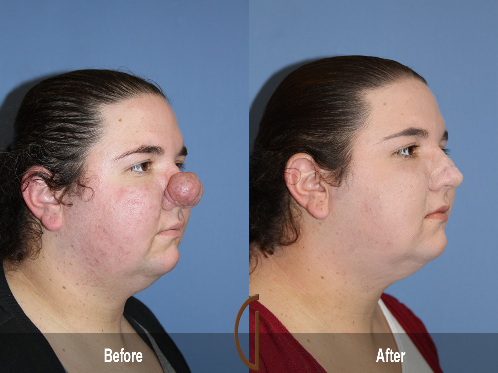 plastic surgery pros cons essay