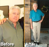 Bariatric Surgery Austin Success Story for TBS