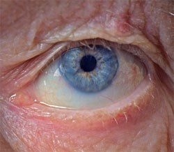 elderly person blinded by pharmcist