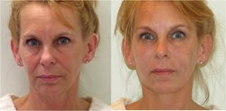 non-surgical facelift with Perlane