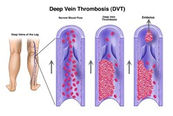 Maintaining a healthy weight, exercising regularly, and quitting smoking can all lead to better vascular health and a lower chance of DVT