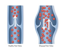 Chronic venous insufficiency is a long-term reduction in your body's ability to transport blood effectively.
