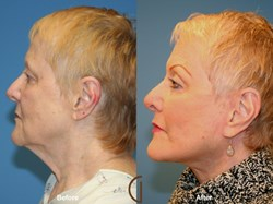 Dr. Kevin Sadati Orange County Patients for a Neck Lift