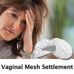 Vaginal Mesh Lawsuit Settlement