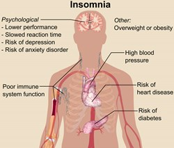 Insomnia, PCCSNOVA, Sleep disorders