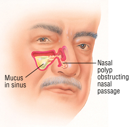 Nasal Polyps Treatment Miracle Review Exposes Manuel Richard S Tips To Avoid Surgery