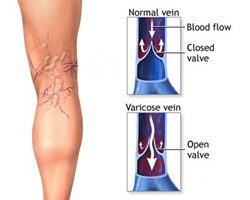 The Comprehensive Vein Treatment Center is announcing the launch of a new public health campaign about venous insufficiency.