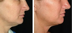 Thermage Face and Chin Before and after