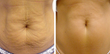 Thermage Abdomen before and after