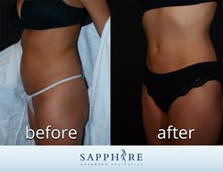 Tickle Liposuction Results