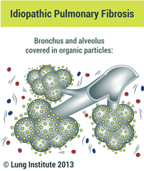 Picture of Medical Illustration of Pulmonary Fibrosis