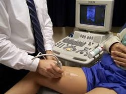 Ultrasound plays an invaluable role in providing patients with the most effective forms of vein treatment possible.