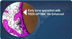 High degree of bone contact with PEEK-OPTIMA HA Enhanced is shown on the histology image taken at 12 weeks in the study.