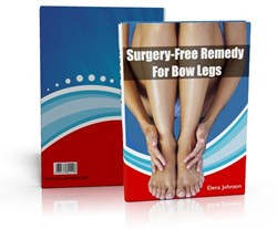 how to correct bow legs how surgery-free remedy for bow legs