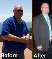 Gastric Bypass Surgery San Antonio Success Story for TBS