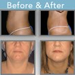 Lipo Body Sculpture of Houston Announces Breakthrough Treatment for...
