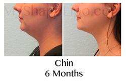 chin liposuction, lipo chin, double chin, better profile, chin fat, liposuction to the chin