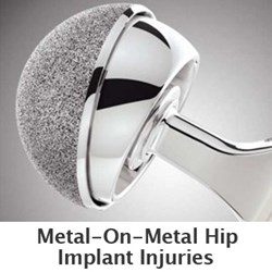 Free DePuy hip replacement lawsuit case evaluations are available through www.yourlegalhelp.com, or call 1-888-365-2602.