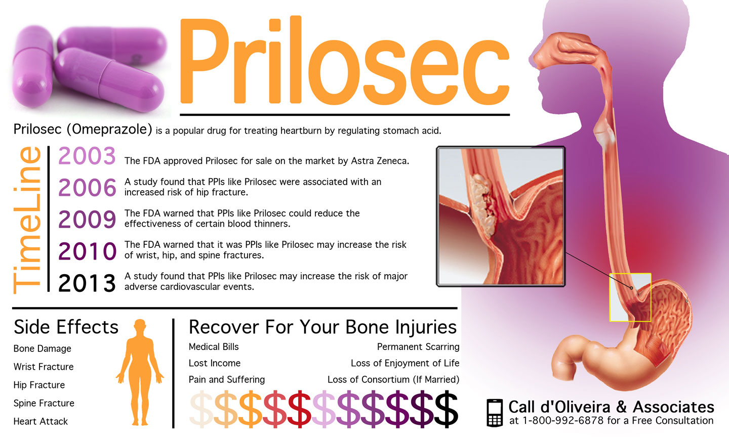 injury lawyer releases new information graphic on the alleged risks of heartburn drugs like prilosec