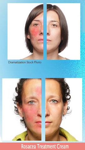 Revitol Rosacea Treatment Cream Now Offers Extra Discount At Beautyshope Com