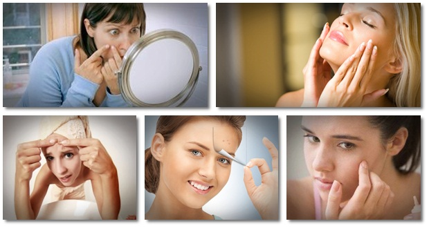 Natural ways to clear skin of acne