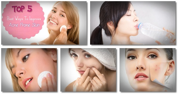 Acne Remedies Guide Online 2