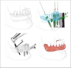 3D in Dental Implants