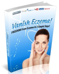 natural remedies for eczema how vanish eczema