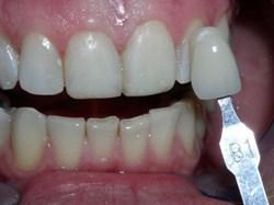 Dr. Robert Mokbel is a Prosthodontist in Fountain Valley, CA