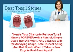 natural remedies for tonsil stones how beat tonsil stones