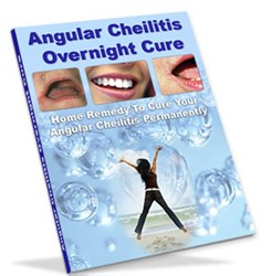 home remedies for angular cheilitis how angular cheilitis overnight cure