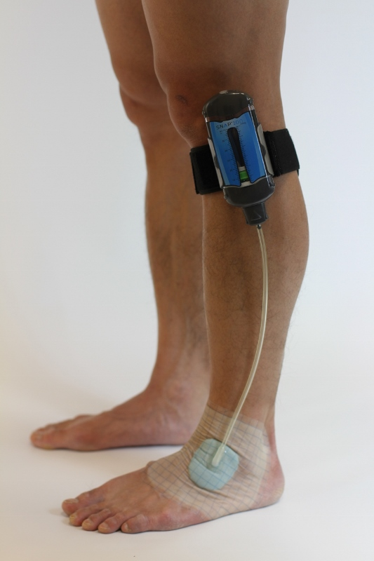 Spiracur Secures Tga Approval For Snap Wound Care System