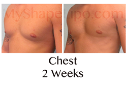 male chest, gynecomastia, man boobs, male breasts, gynecomastia procedure, myshape lipo, trevor schmidt pa-c