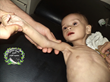 Syrian Expatriates Organization (SEO) Deeply Concerned by Reports of Impending Mass Starvation in Syria, Malnutrition of Children