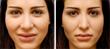 Nose Job Expert Dr. Babak Azizzadeh's New Article Explains How to...