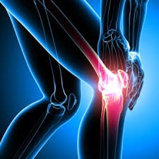 Zimmer NexGen Knee implant: serious complications