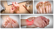 how to treat gout naturally cure gout now help