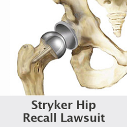 Six Stryker Hip Lawsuits Filed By Wright & Schulte LLC Contend Revision Surgery and Metallosis Due To Hip Stem Replacement