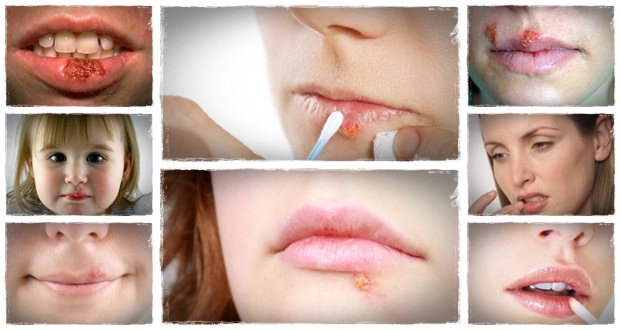 Cure for cold sores forever
