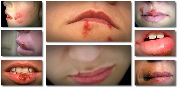 How do treat cold sores genetic