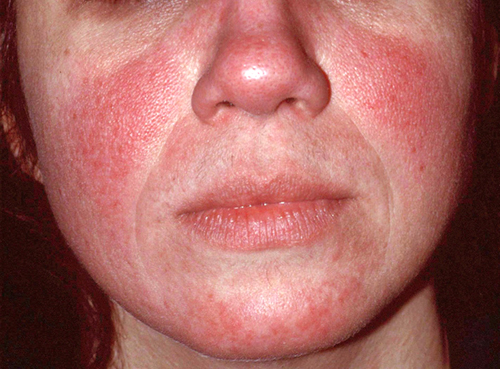 New Rosacea Survey Pinpoints Flushing, Redness as First Signs  Flushed