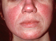 The 'Sunburn' That Won't Go Away: Summer Tips for Controlling Rosacea